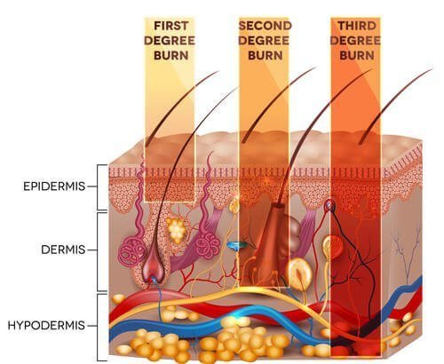 3 Types of Burn Injuries by Degree